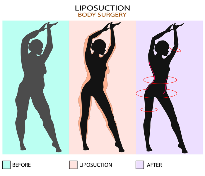 Liposuction Cost In NYC