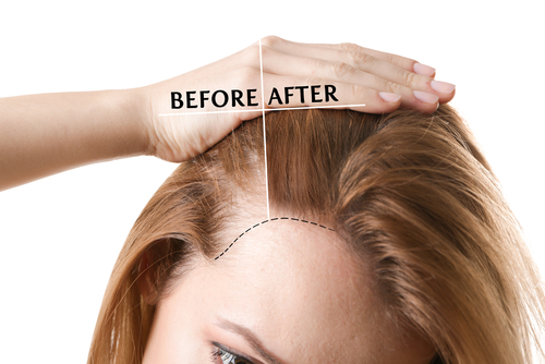 PRP HAIR RESTORATION TREATMENT – AN EFFECTIVE SOLUTION FOR FEMALE HAIR LOSS