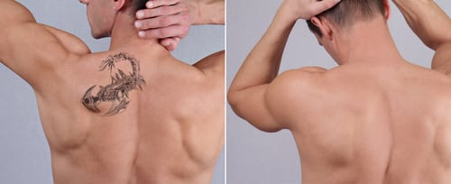 NYC laser tattoo removal