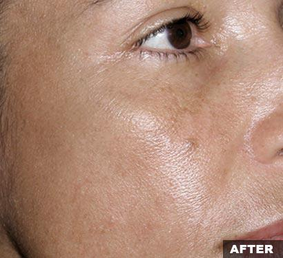 after fraxel laser recovery