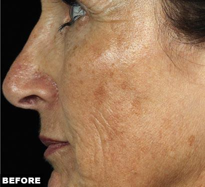 fraxel laser before face