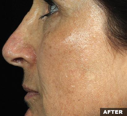 fraxel laser after face