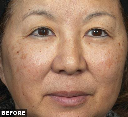 fraxel laser acne scars