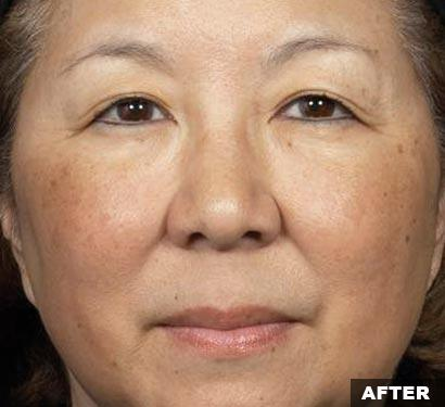 After fraxel acne scars