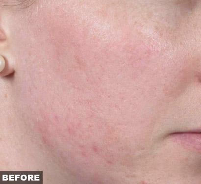 fraxel before acne scars