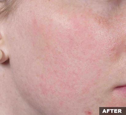 fraxel after acne scars