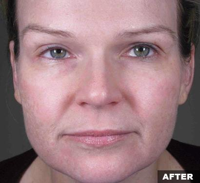 fraxel acne scars after