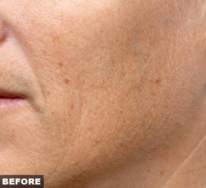 fraxel laser acne scars before