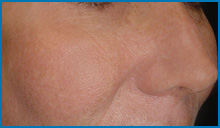 Photofacial after on face