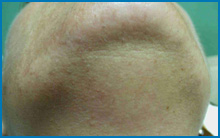 permanent laser hair removal