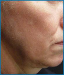 skin tightening before