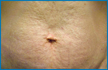 skin tightening laser after NY