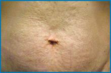 skin tightening laser after NY