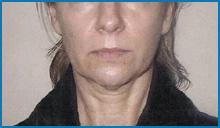 body skin tightening laser before