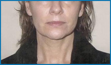 body skin tightening laser after