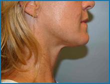 laser for skin tightening before