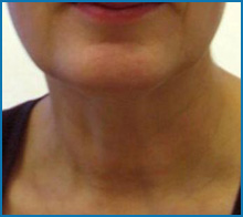 skin tightening lasers after