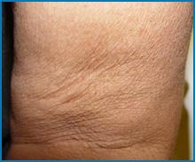 laser neck skin tightening