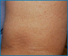 skin tightening laser treatment