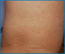 skin tightening laser treatment