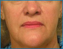 laser to tighten skin under eyes