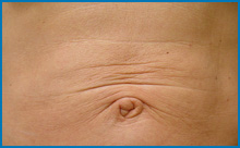 do skin tightening lasers work