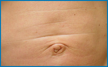 laser treatment for tightening skin