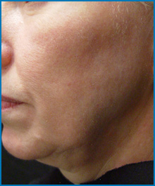 face skin tightening laser before