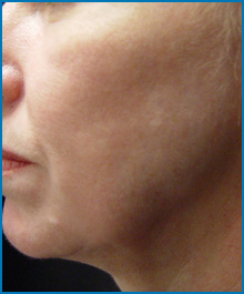 face skin tightening laser after