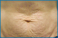 skin tightening laser before NY