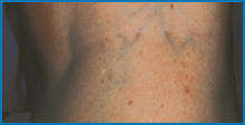 laser vein removal cost