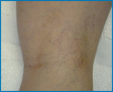 spider vein removal laser NYC