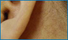 laser spider vein removal cost