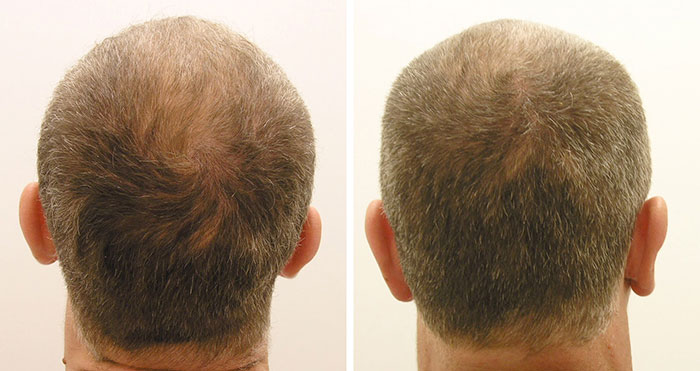 ACell and PRP for Hair Restoration
