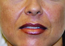 dermal fillers in lips before