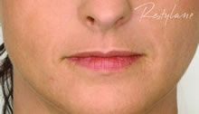 dermal fillers lips cost