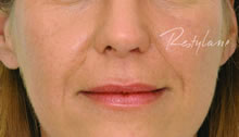 dermal filler lips before image