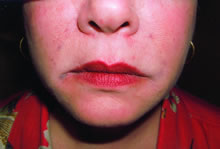 dermal fillers nose to mouth lines after