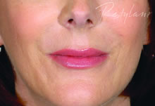 dermal fillers after for nose