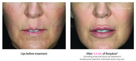 dermal fillers lips