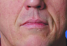 dermal nose fillers