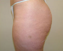 cellulite surgery before and after