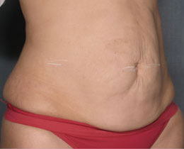 most effective cellulite treatment