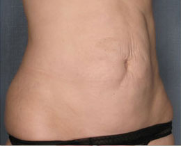 permanent cellulite treatment
