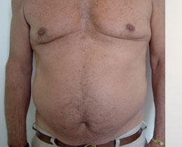 cellulite surgery removal