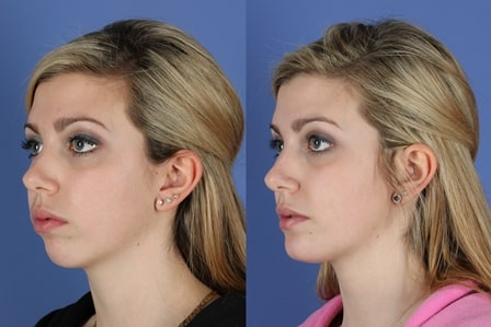 Chin Cheek Implants