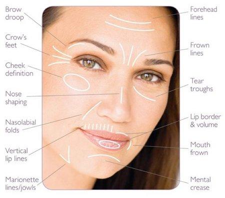 facial-diagram-3