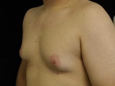gp4d_gynecomastia_20091126_1853368876-07