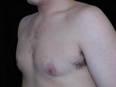 gp4d_gynecomastia_20091126_1853368876-08
