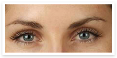 botox eyebrow lift after